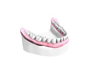 Remplacer plusieurs dents absentes ou abîmées - Dentiste Osny