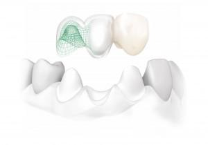 Couronnes et bridges - Dentiste Osny