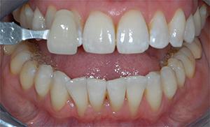 Blanchiment dentaire Après